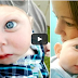 Watch: Against All Odds The Baby Survives Even Without His Complete Skull