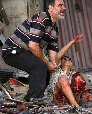 foto kejahatan zionis israel