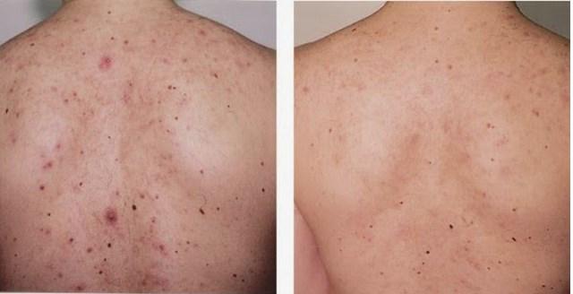 zinktabletter mot acne