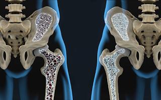 Causas e cuidados necessários para combater a Osteoporose