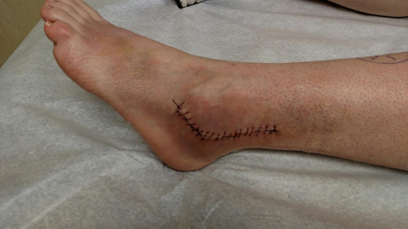 Recovering From My Second Peroneal Tendon Surgery