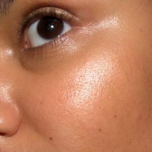 De um acne com prata