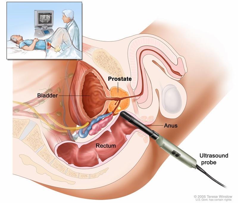 Операции рака предстательной железы в спб
