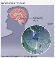 Cara Tradisional Sembuhkan Penyakit Parkinson