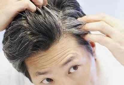 Mengatasi Rambut Uban di Usia Muda