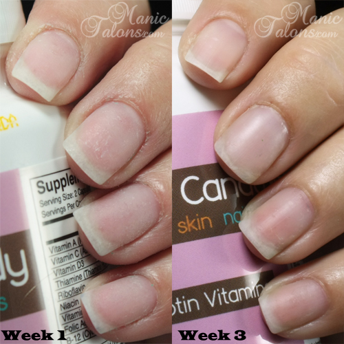 Hair Candy Vitamins Nail Progress Comparison