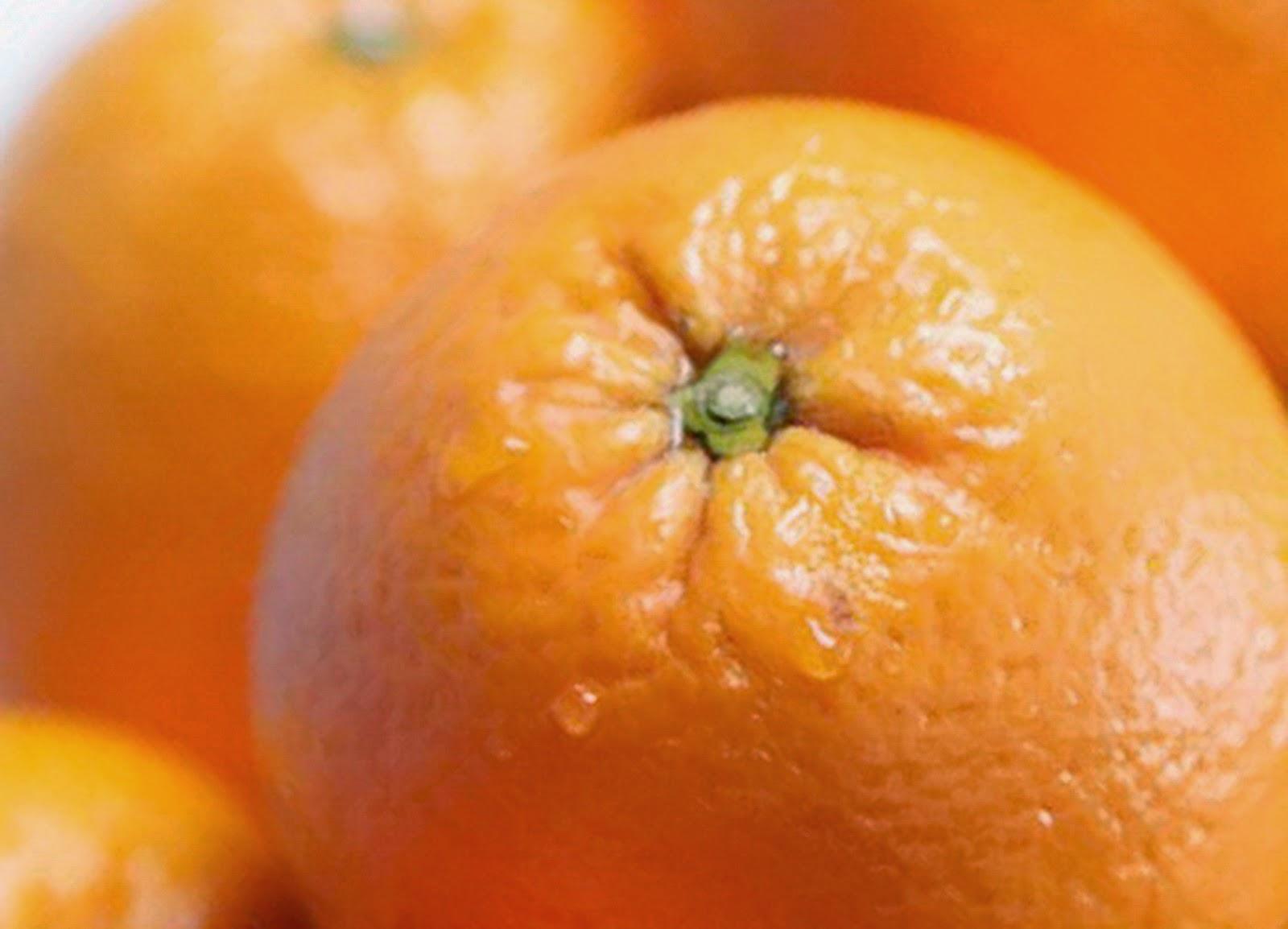 Jenis Makanan yang Berdampak Buruk bagi Kesehatan Gigi