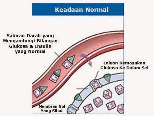 Kencing Manis Vs Diabetes