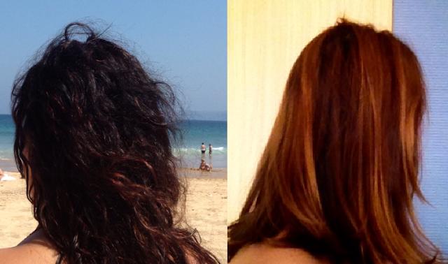taninoplastia antes y después