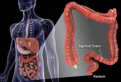 How to care for the health of the colon in the woman
