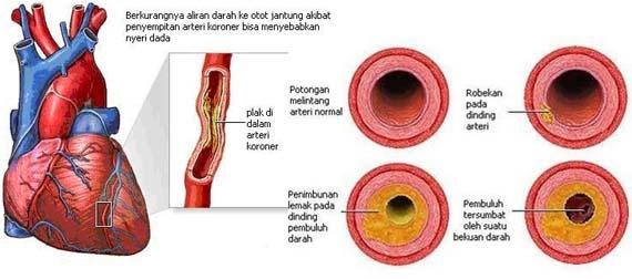 Obat Turunkan Kolesterol Jahat, Penyakit Jantung dan Stroke