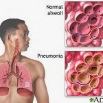 Pneumonia Know Tips: Understanding the Symptoms of Pneumonia