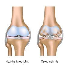 Pengobatan untuk Osteoarthritis