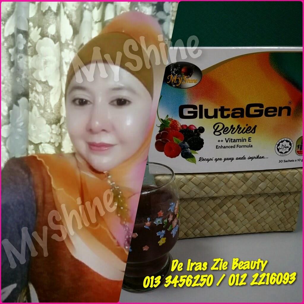 Hasil Meminum MyShine GlutaGen Berries ++ Vit E