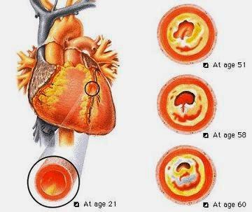 pengobatan herbal jantung koroner
