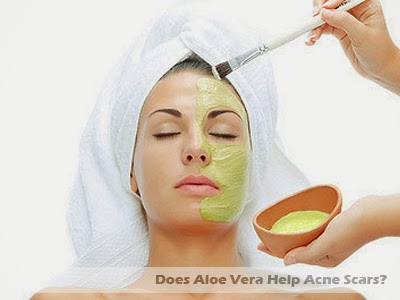 does aloe vera help acne scars breakouts