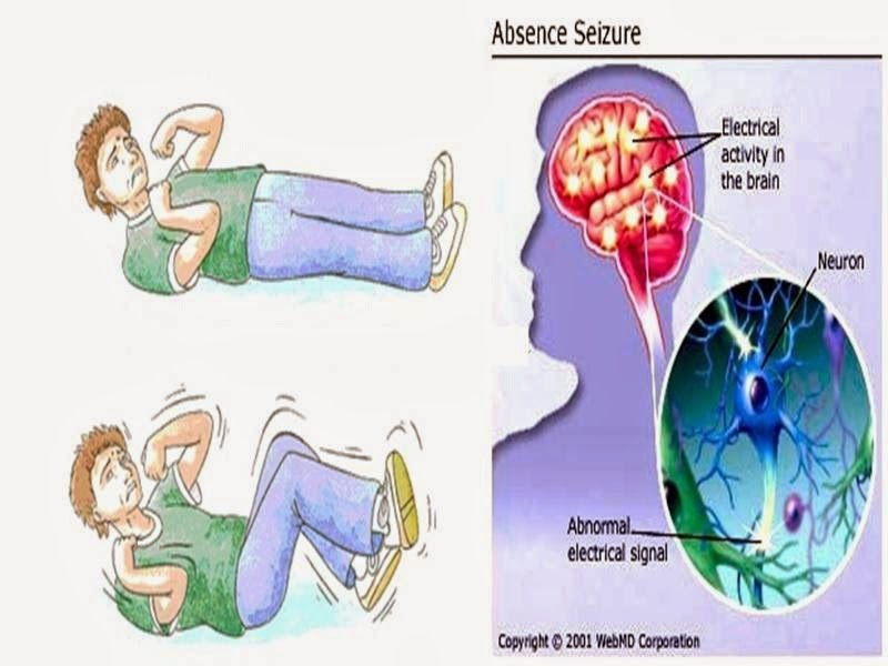 Cara Menyembuhkan Penyakit Epilepsi Secara Alami