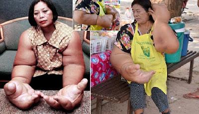Sakit Langka, Wanita Ini Punya Tangan Terbesar di Dunia