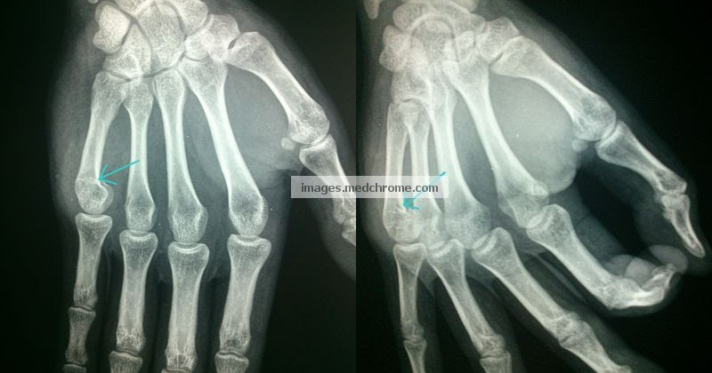 Boxer S Fracture Fracture Of Neck Of 5th Metacarpal