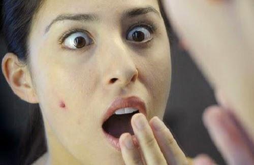 penyebab jerawat di wajah