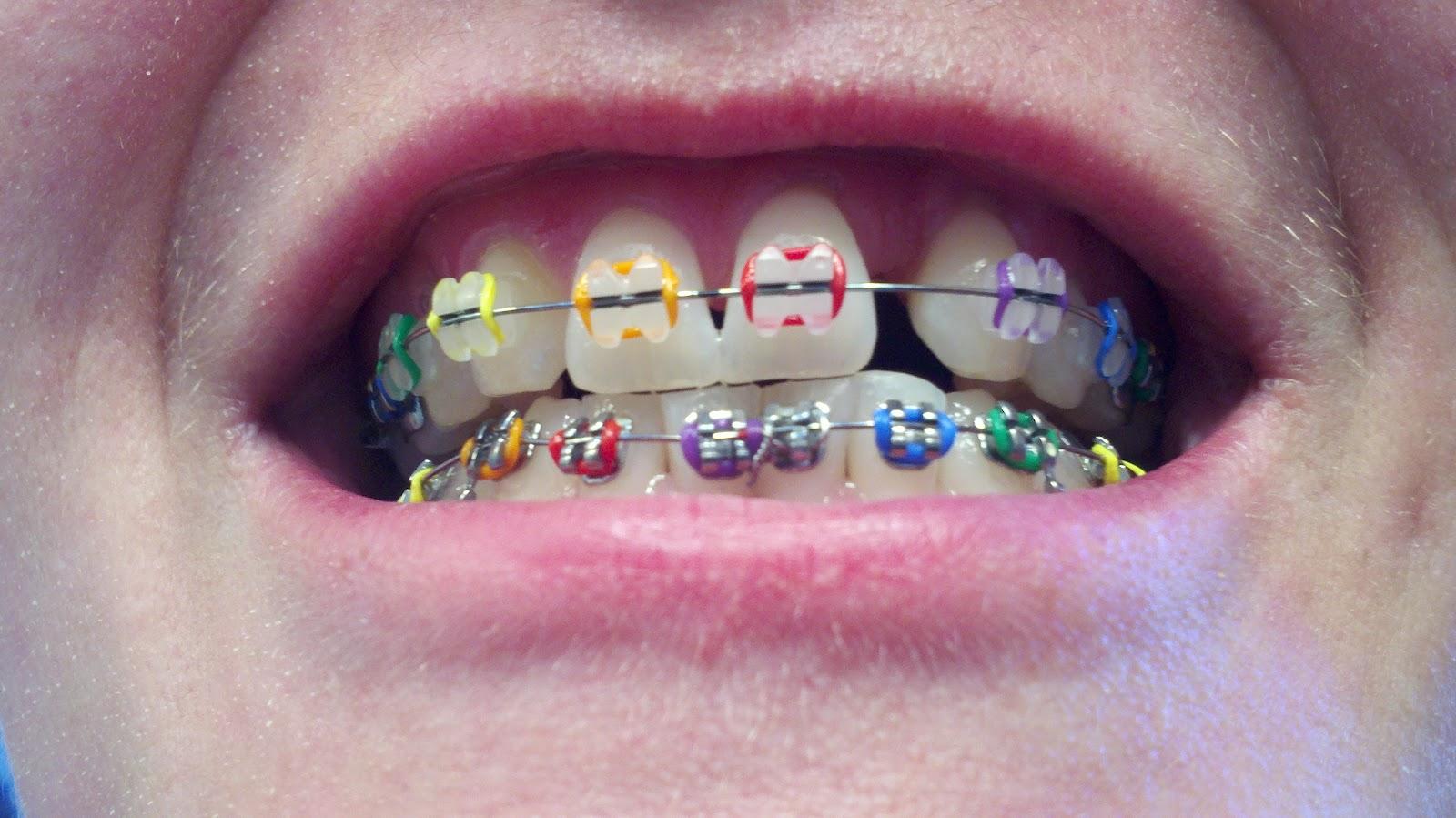 Brace Braces Colors Rubber