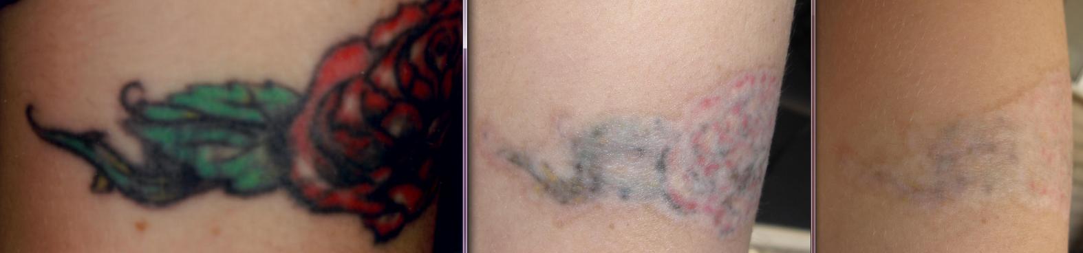 Tattoo Removal Process