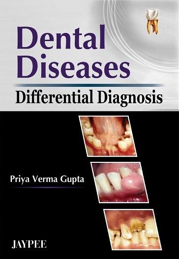 Differential Diagnosis of Oral and Maxillofacial Lesions, 5e