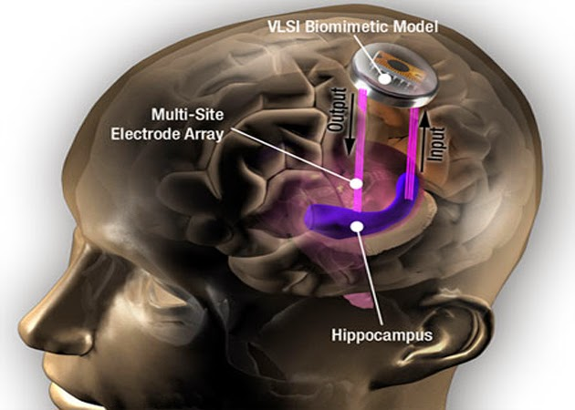 implantes cerebrales