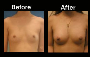 Jacksonville breast augmentation pricing