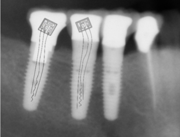 BRACKETS DE TORTURA - Página 2 Teeth-xray_microchip