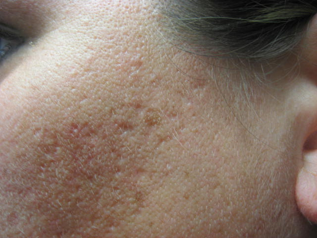 gallery for gt really bad acne scars