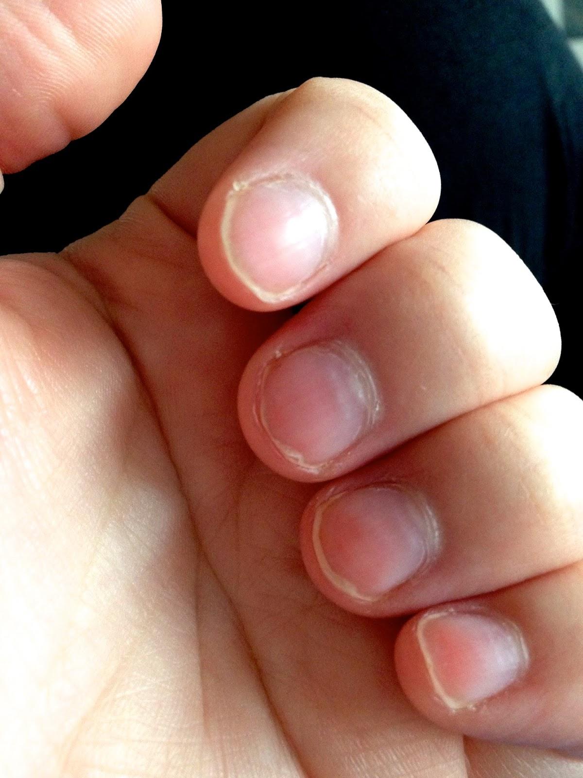 mina naglar skivar sig