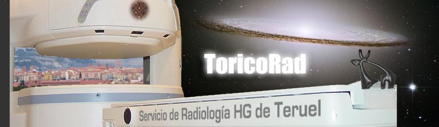 ToricoRad