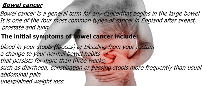bowel cancer symptoms, Human Body