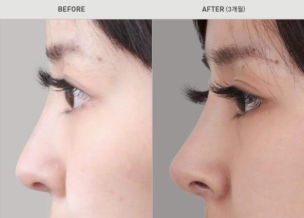 Foto sebelum dan sesudah operasi plastik hidung di Wonjin