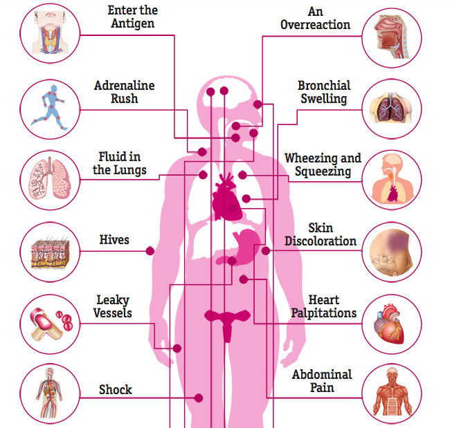causes effects on the body and treatment of anaphylaxis
