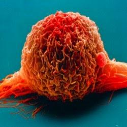 Câncer de bexiga, importante avanço em imunoterapia