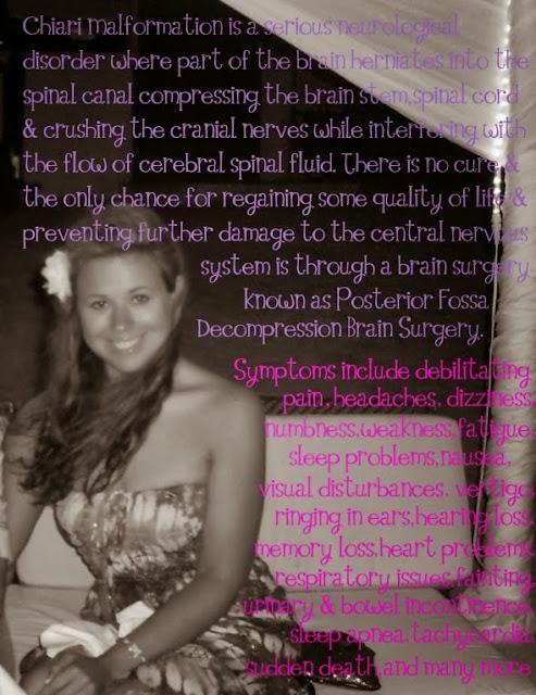 Chiari Malformation, Brain Surgery, Symptoms, Thrive