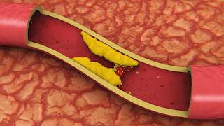 Gejala Kolesterol Tinggi Dan Cara Menurunkan Kolesterol Tinggi