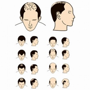 Feed Your Health: Hair Loss Reasons & Remedies