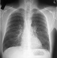 obat paru akibat merokok