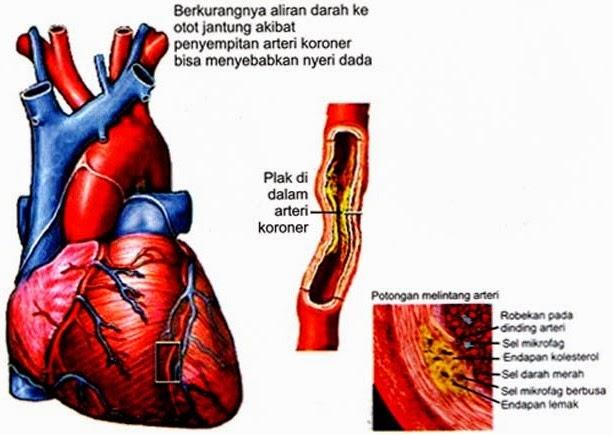 penyakit jantung koroer