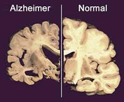 cara mencegah penyakit alzheimer