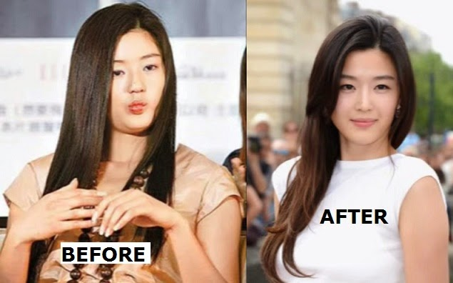 jun ji hyun before and after plastic surgery