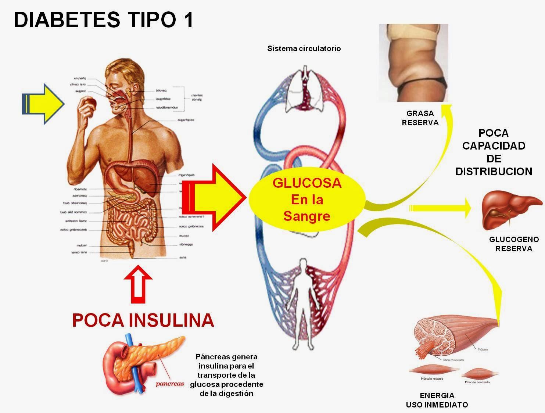 Diabetes Mellitus Tipo 1 | www.pixshark.com - Images