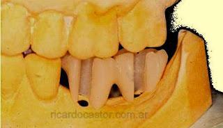 guía quirúrgica para implantes dentales
