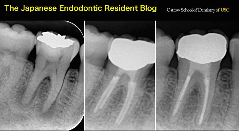 The Japanese Endodontic Resident Blog