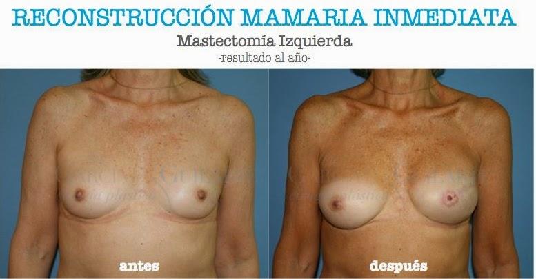 reconstruccion_mama