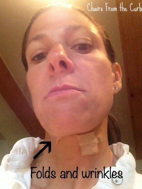 Folds and wrinkles from neck band aids #turkeywaddleneck
