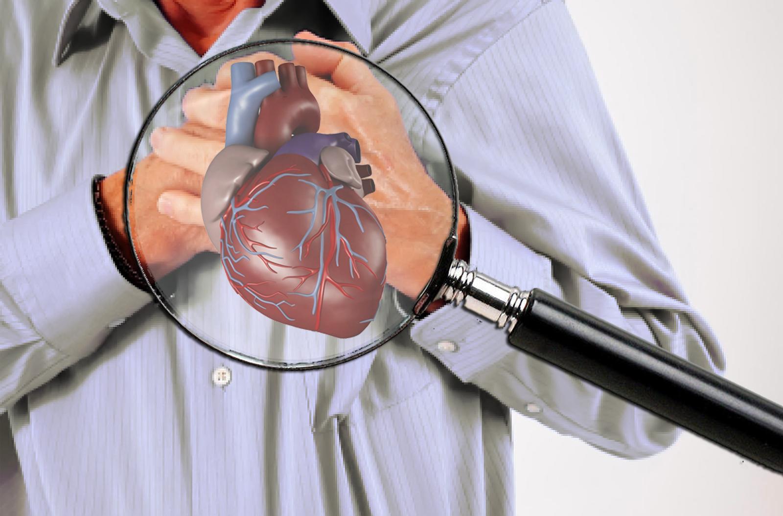 Hasil gambar untuk Ciri-Ciri Penyakit Aritmia Jantung Yang Harus Anda Waspadai